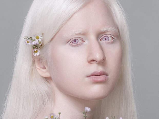 «Волосы в темноте светятся»: альбиносы раскрыли тайны своей жизни