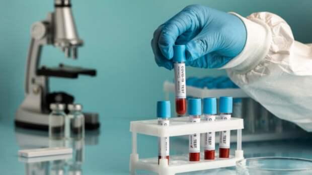 О новых смертях от коронавируса рассказали в Ростовской области