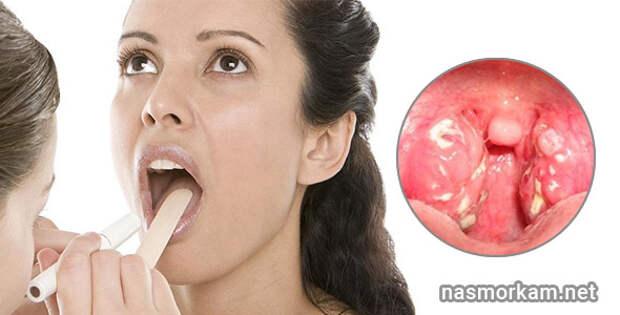 В горле белые комочки - что это? Причины. Методы лечения