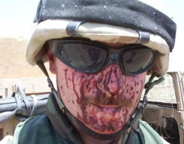 Последствия попадания в очки: cсадины, царапины, может нос сломан, зато живой и с глазами. |Фото: paraparabellum.ru