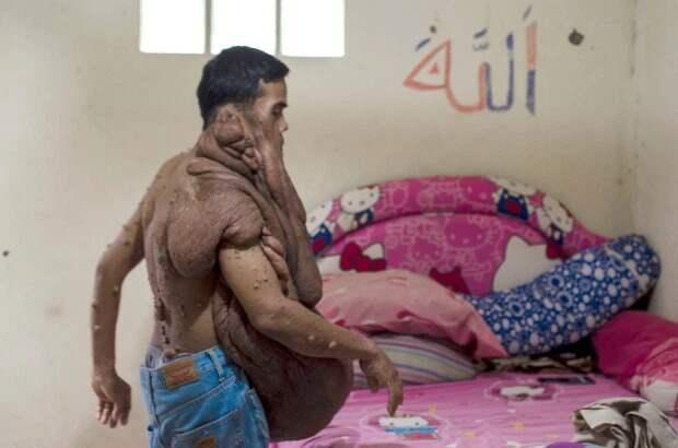 Индонезиец с38-килограммовой опухолью налице мечтает обоперации