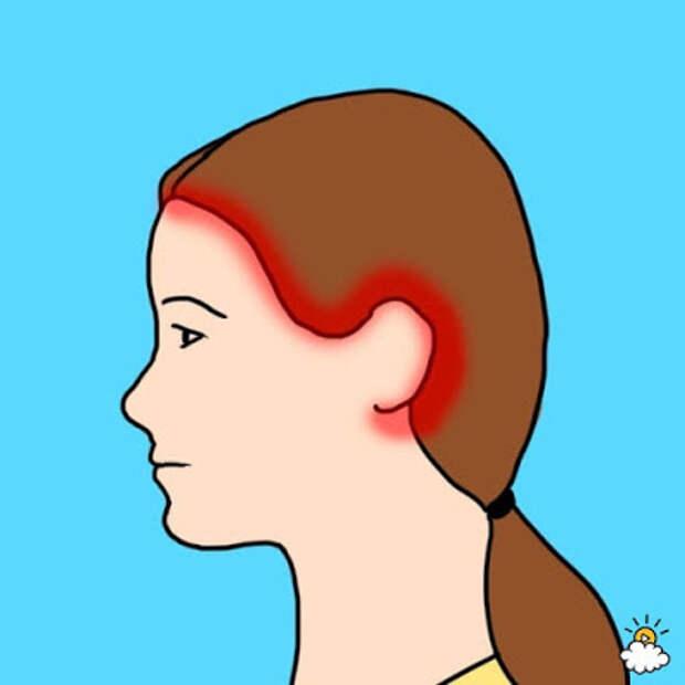 10 видов головной боли и их причины