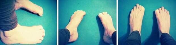 от плоскостопия болят ноги