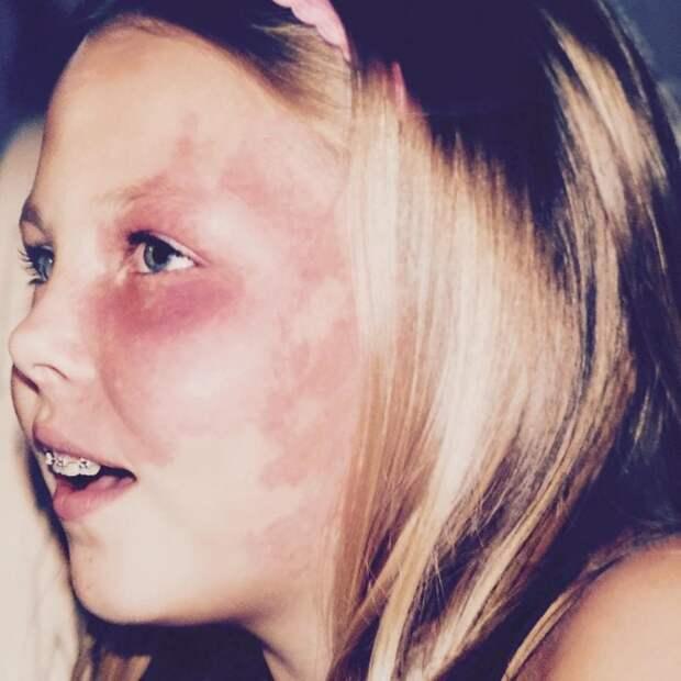 Девушка с родимым пятном на лице стала звездой и помогает людям поверить в себя девушка, родимое пятно
