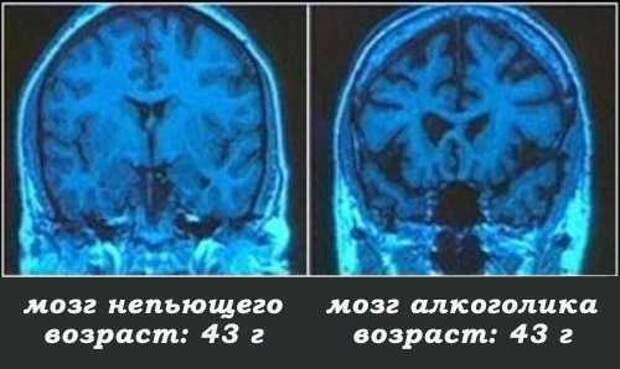 Картинки по запросу мозг алкоголика