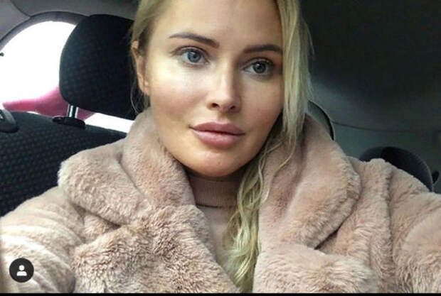 Дана Борисова сделала подтяжку и лица и сняла процесс на камеру