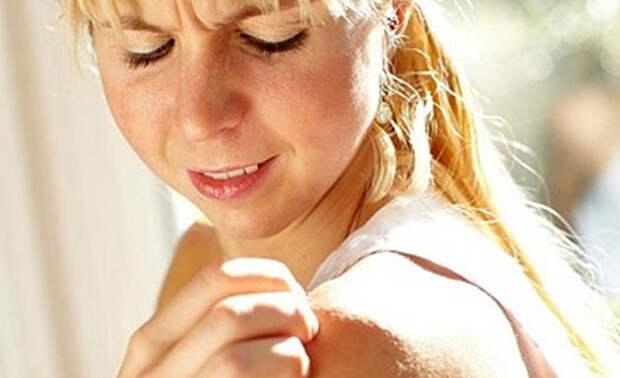 5 домашних средств, которые помогут, если у вас дерматит