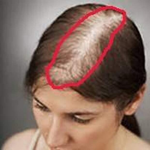 Залысины? Врач показал домашний способ, как сделать густые волосы за 7 дней