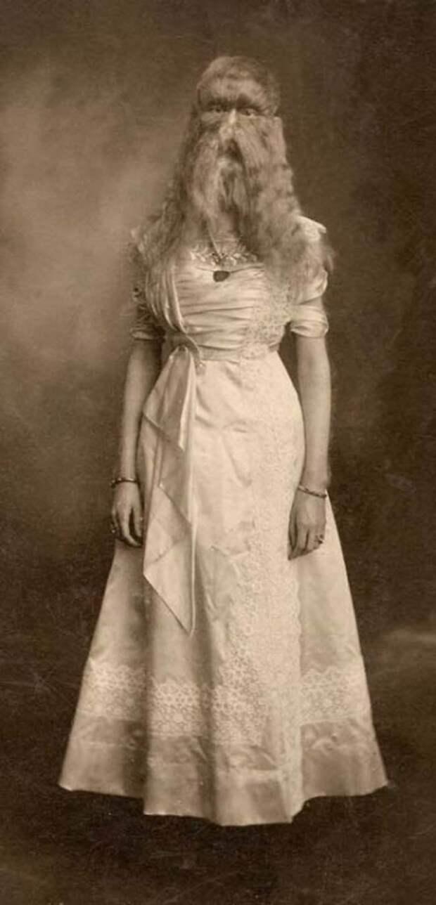 Элис Доэрти. Её показывали как экспонат, и называли шерстяной девушкой интересное, прошлое, фото, цирк