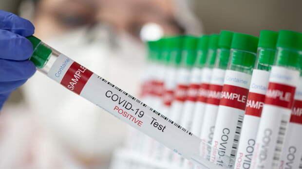 В Бразилии число случаев коронавируса за сутки возросло на 77 тысяч