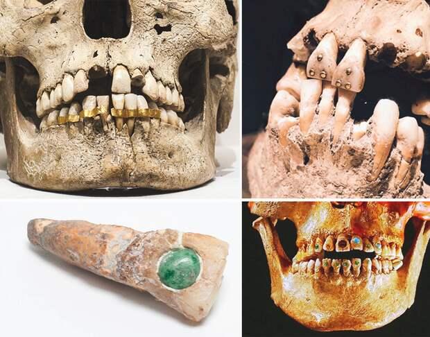 Кто ввел в моду украшения для зубов