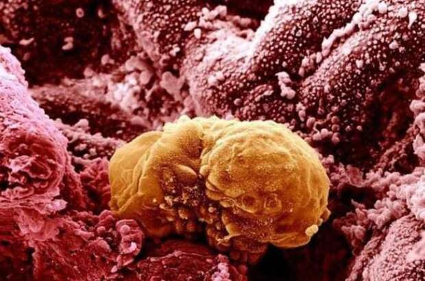 17. Человеческий эмбрион организм, под микроскопом