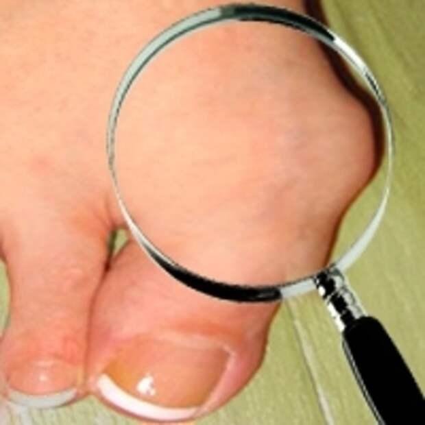 Шишка на ноге разгладится за 8 дней если протереть её раствором...