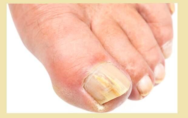 Заболевание ногтей на пальцах ног