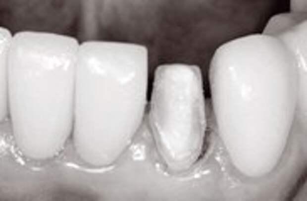 Остановка кровотечения при реставрации зубов