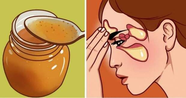 Самые мощные средства от слизи: лечим насморк, гайморит и кашель за 1 день