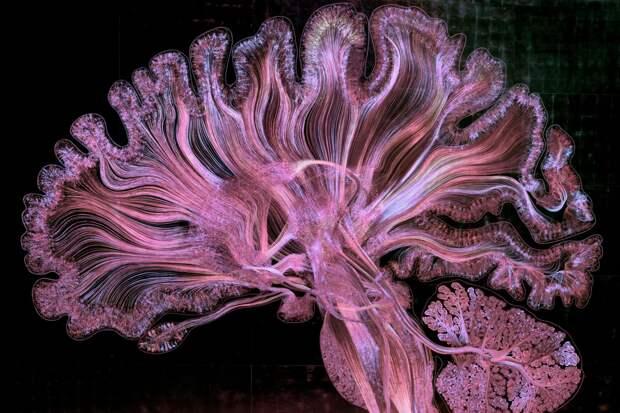 Мозг в белом, красном и фиолетовом