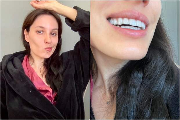 Селебы и зубы