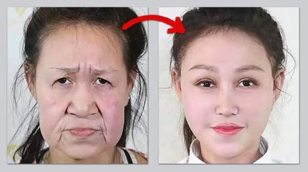 Хирурги подарили 15-летней школьнице-«бабушке» новое лицо