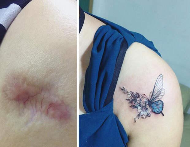 Эти 9 людей перекрыли свои шрамы татуировками