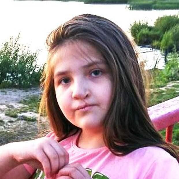 Диана Ниязова, 10 лет, недоразвитие верхней челюсти, расщелина альвеолярного отростка, требуется ортодонтическое лечение, 165900₽