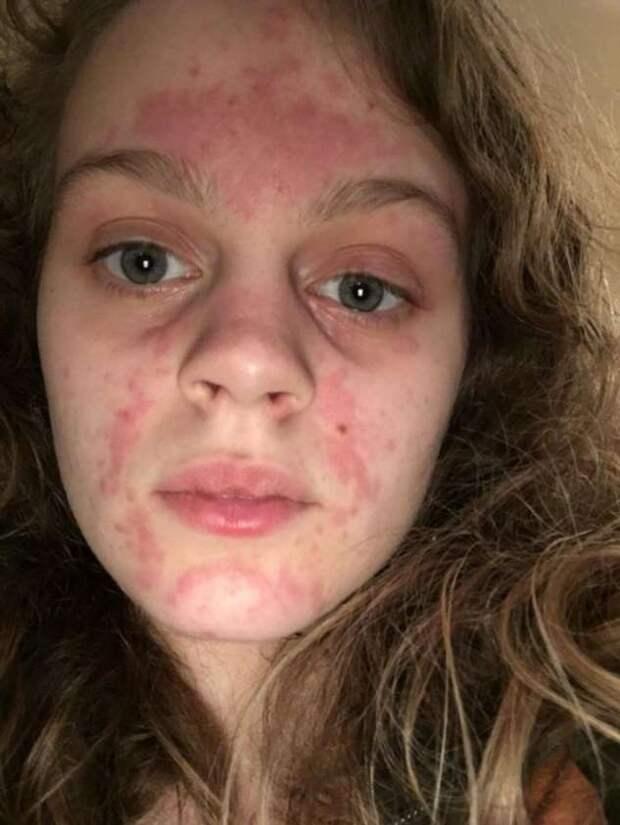 20 человек рассказали, как им живется с редкими видами аллергии