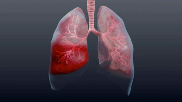 Осторожно, пневмония! Как выявить на ранней стадии и быстрее выздороветь