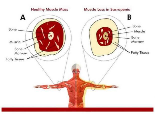Что нужно знать о саркопении