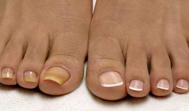 Почему ногти желтеют, чернеют, слоятся? Способы лечения и профилактические меры