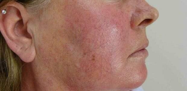 Заболевания, при которых горит лицо