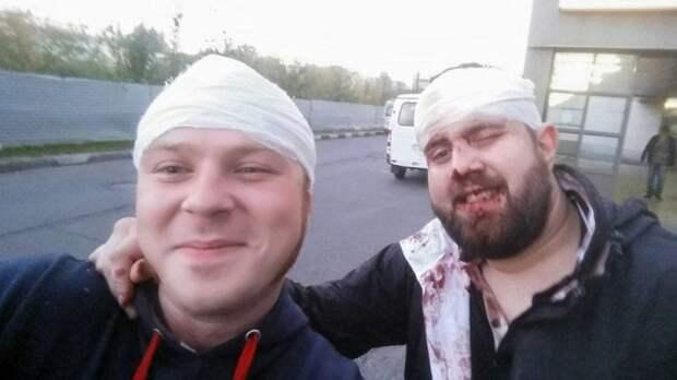 Александр Орлов, ударивший журналиста ВДВ Никиту Развожаева, хочет договориться (8 фото)