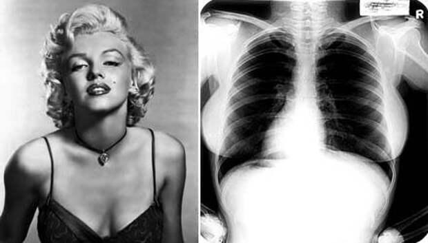 мэрилин монро и рентген ее легких