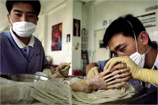 Экспонаты анатомической выставки Body Worlds могут скрывать жуткую тайну