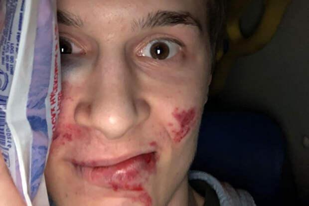 Уголовное дело возбудили после избиения Егора Жукова в Москве
