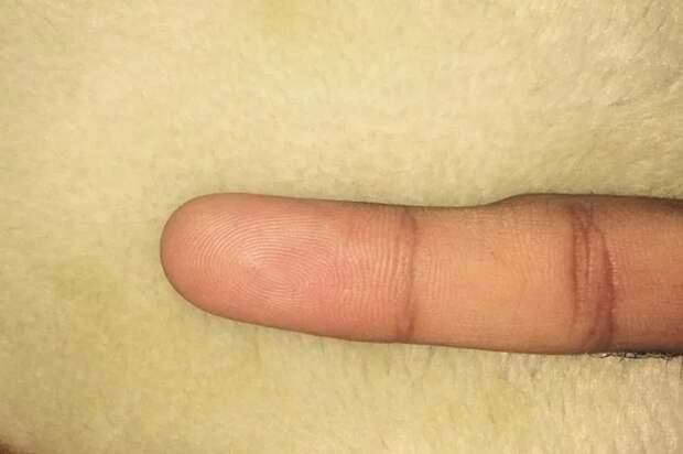 Смарт-мизинец: упользователей смартфонов все чаще встречается деформация пальца