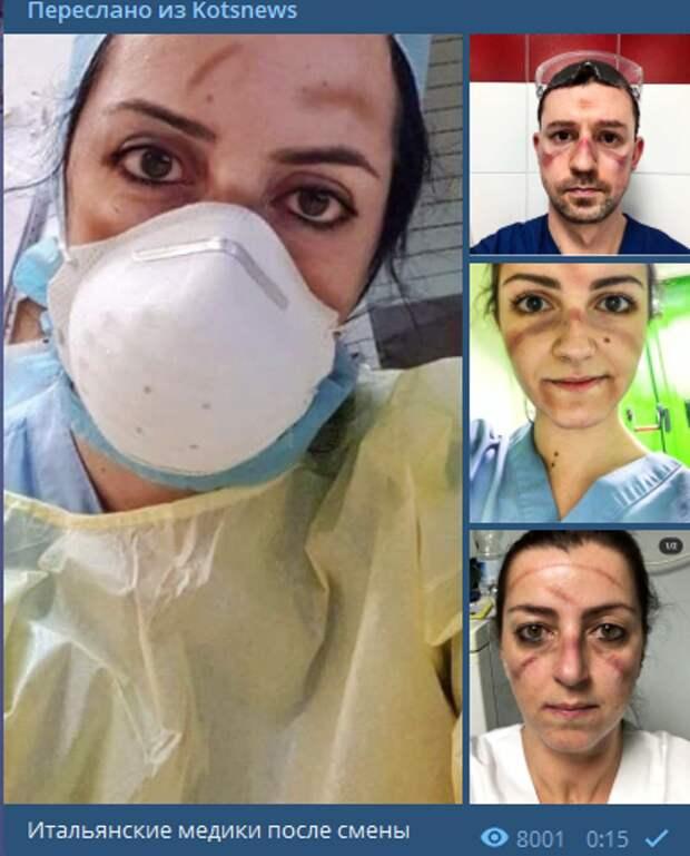 Под глазами - синяки, на скулах - отметины: Коц показал фото итальянских медиков после смены