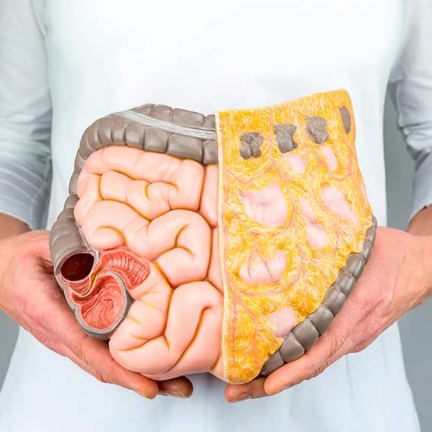 Чем опасен висцеральный жир в брюшной полости