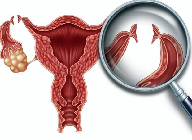 Женская стерилизация