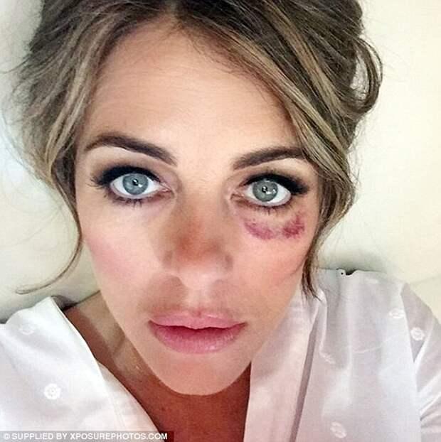 Elizabeth Hurley поделилась фото с синяком в 2017 году.
