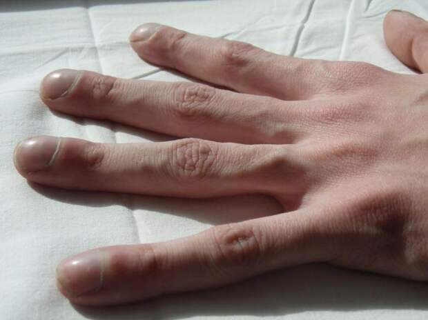Состояние рук и здоровье: 9 симптомов заболеваний