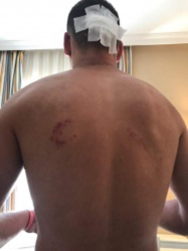 «Загнали под лестницу и били ногами». Подробности нападения сотрудников турецкого отеля на уральцев