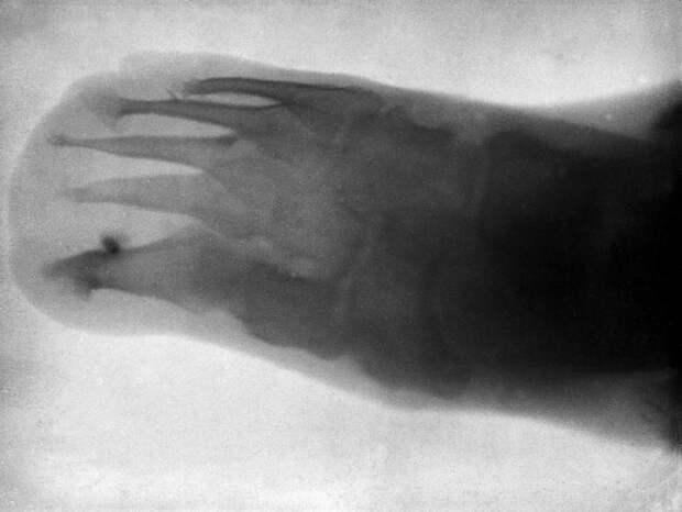 Нога шестилетнего Леонарда Шустера в 1896 году. | Фото: wellcomeimages.org.