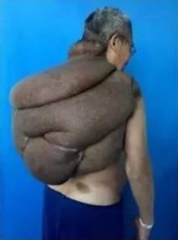 100 хирургов в течение 33 часов срезали со спины китайца раковую опухоль весом 15 кг