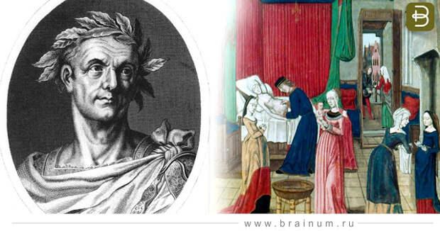 Разоблачение мифов: Что связывает Цезаря и кесарево сечение