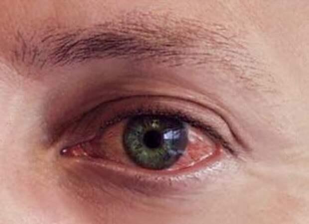 Причины болезней глаз и воспалений