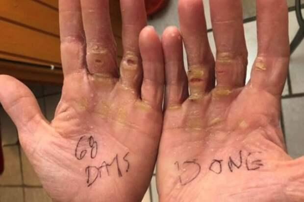 Руки Мишель Ли, пересекшей Атлантический океан на веслах