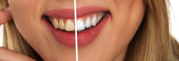 Стоматолог Григорян назвал безопасное для зубной эмали количество чашек кофе в день