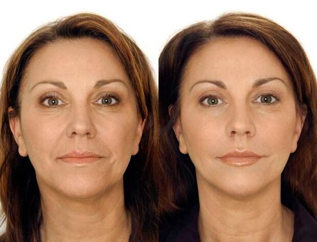 Картинки по запросу мезотерапия лица фото до и после