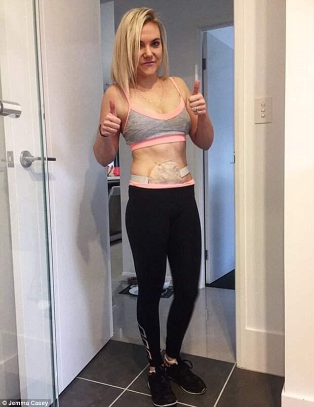 Из больницы - к горным вершинам: женщина хочет подняться на 4 горы за 4 дня, несмотря на болезнь болезнь, горные вершины, тренировки