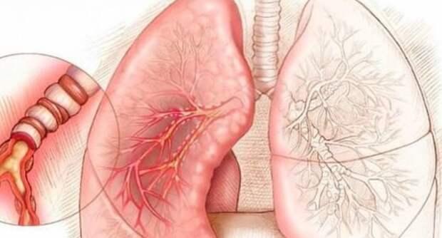 Очищаем и оздоравливаем лёгкие